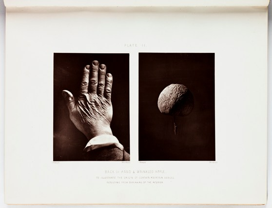 Two images on the same page in a book. One shows the back of an elderly hand the other a wrinkled apple to illustrate the origin of certain mountain ranges resulting from shrinking of the interior