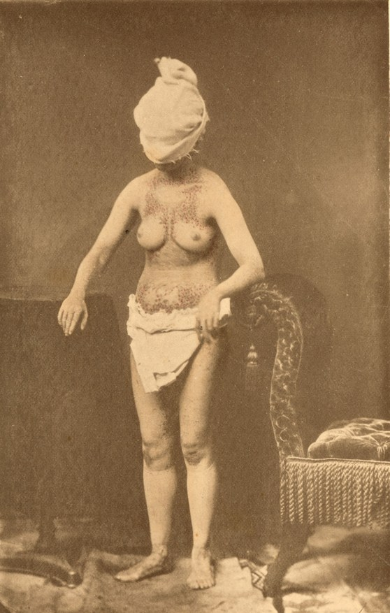 Amateur black and white photograph of a young adult woman with bare torso showing scarring from tuberculosis infection wearing a towel as a hood to cover the face