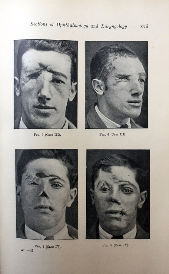 Page from a 1918 book showing soldiers who have sustained significant facial injuries