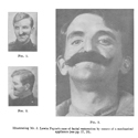 Page from a 1916 journal showing photographs of facial restoration by means of mechanical appliance